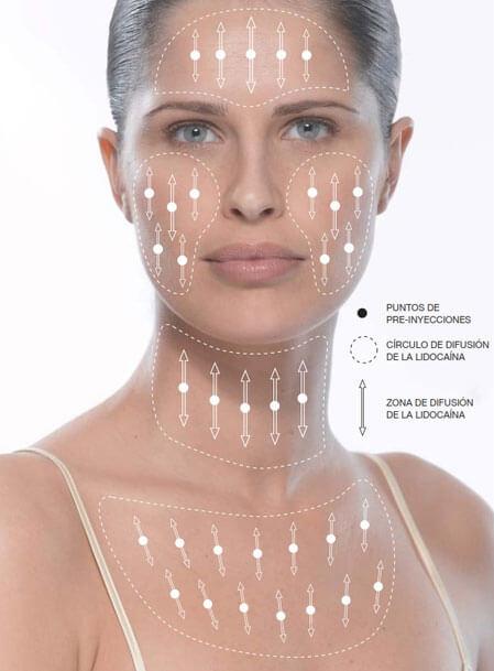 Hautverjüngung Redensity
