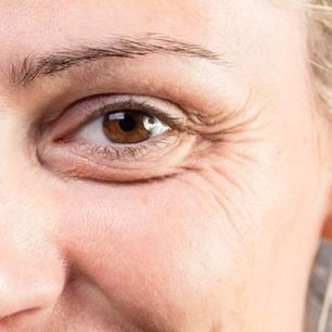 Krähenfüße unterspritzen Botox