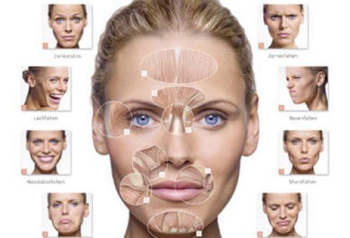 Botox-Falten